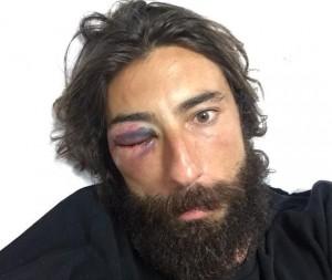 Vittorio Brumotti aggredito in strada