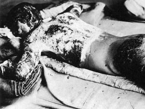 Terribili effetti delle radiazioni nucleari