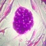 Parkinson – Dalle cellule staminali una cura nel 2018 per il morbo