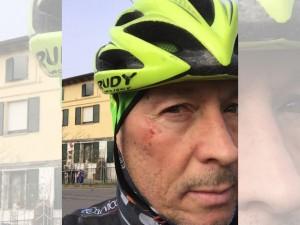 Paolo Belli mostra la ferita sullo zigomo