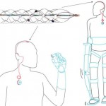 Stentrode, la spina dorsale artificiale per tornare a camminare e muoversi