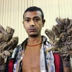 Bangladesh – Governo pagherà le cure per l'uomo albero