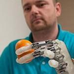 Recupera il tatto grazie a dito bionico, è il primo caso al mondo