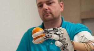 Il dito bionico che consente di percepire gli oggetti