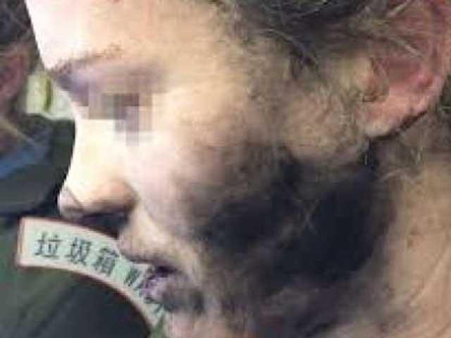Esplodono le cuffie mentre dorme sull'aereo: volto devastato