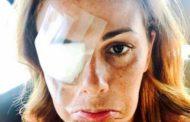 Gossip - Vanessa Incontrada con la benda sull'occhio scatena il panico su Instagram