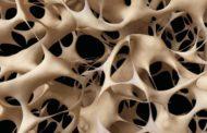 Osteoporosi, al via la campagna